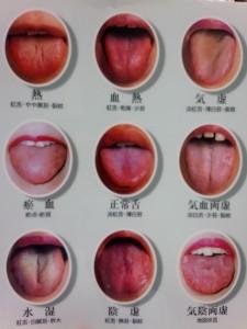 舌診の紹介写真