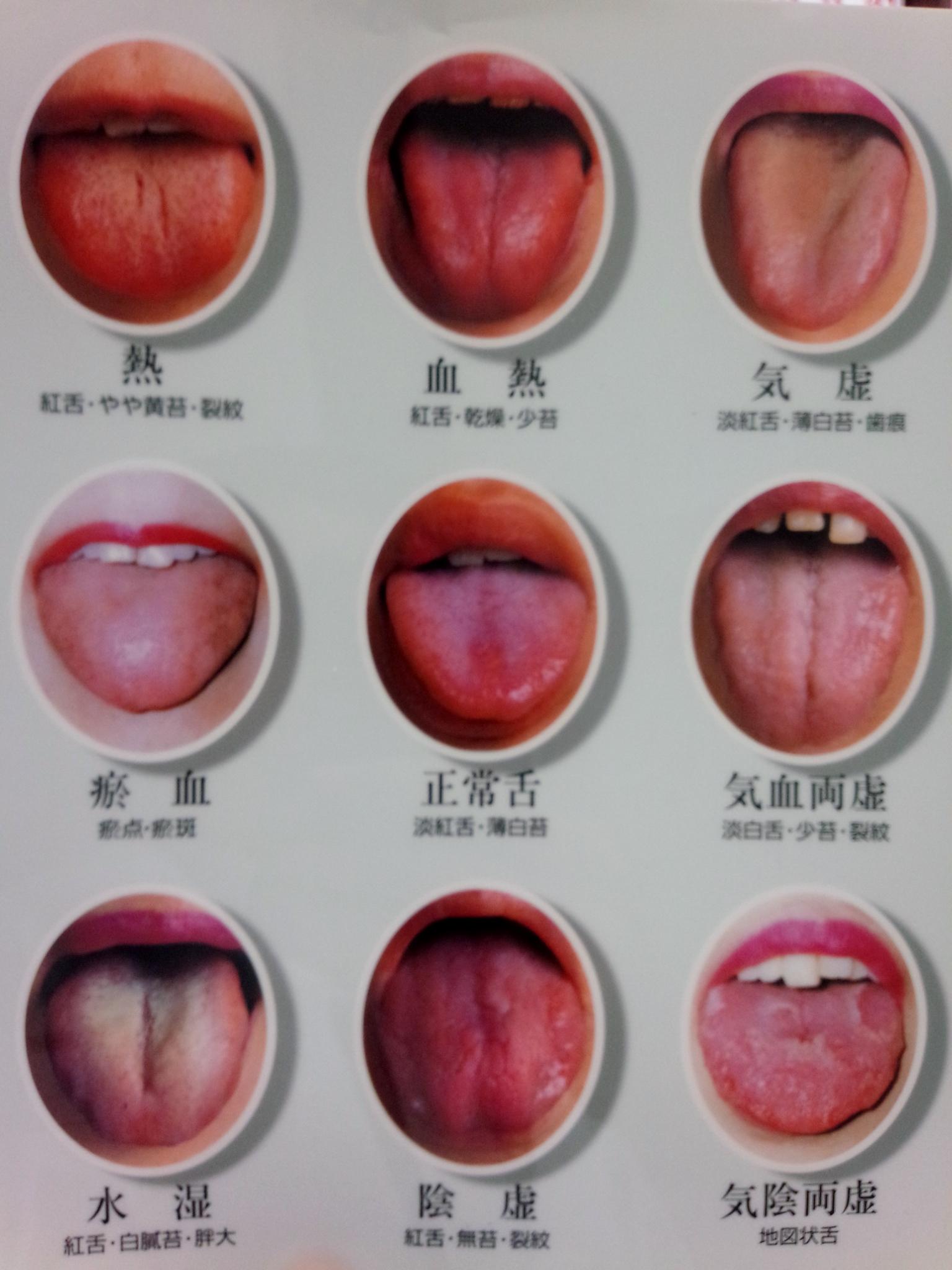 巡心堂漢方薬局(大阪府八尾市)の東洋医学舌診解説の写真です。