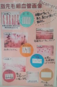 毛細血管血流観察スコープb-scanの説明写真