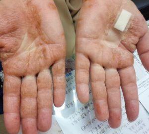 アトピー治療の巡心堂漢方薬局(大阪府八尾市)の全身湿疹症例の両手写真です。