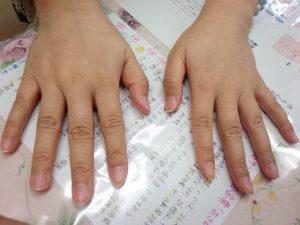 アトピー治療の巡心堂漢方薬局(大阪府八尾市)のジンマシン症例の両手写真です。